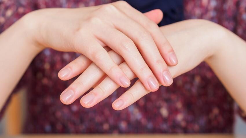 Elle se retrouve amputée d'un doigt après s'être rongé les ongles