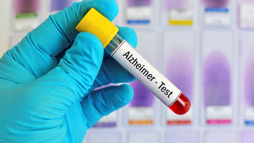 Alzheimer : un simple test sanguin pour l'évaluer