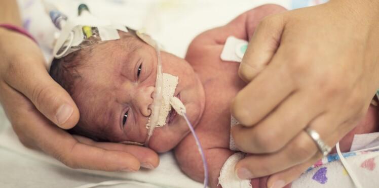 Maladie rare : un bébé naît sans peau, les médecins cherchent à le sauver