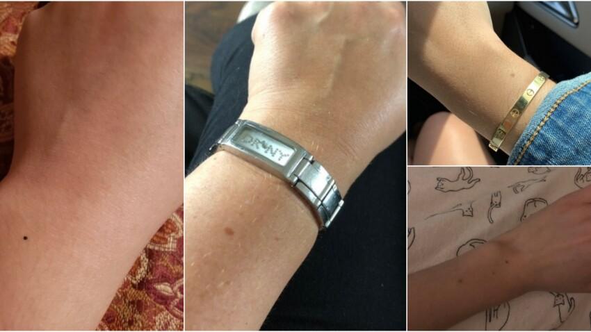 Nous serions nombreuses à avoir la même tache de rousseur sur le bras