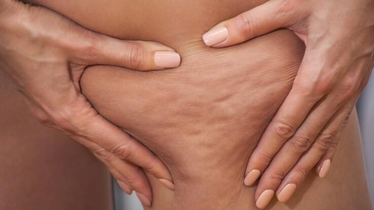 Cellulite : à quel moment de la journée la graisse est-elle stockée ?
