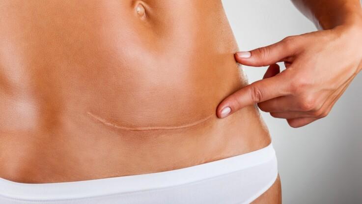 Cicatrices : les meilleurs traitements pour les atténuer