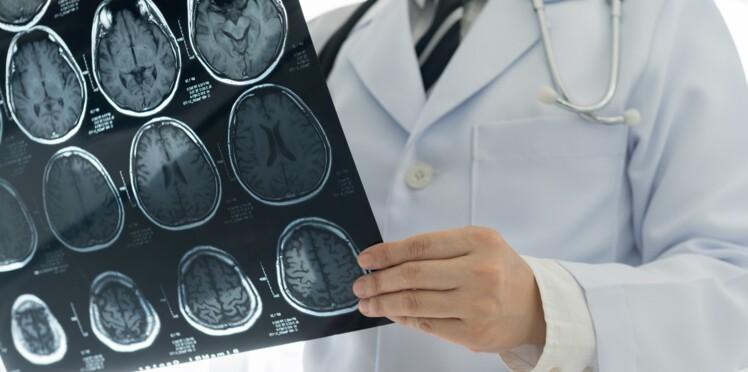 Des médecins croyant opérer une tumeur découvrent un bébé ténia dans le cerveau d'une patiente