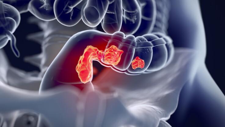 Cancer colorectal : des métastases avant son apparition !