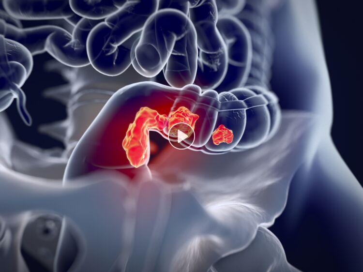 Cancer colorectal : des métastases avant même que la tumeur soit ...