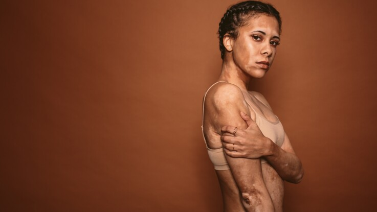Vitiligo : une nouvelle crème efficace contre cette maladie de peau