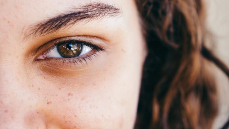 Pellicules de sourcils : oui, ça existe et voici comment s'en débarrasser