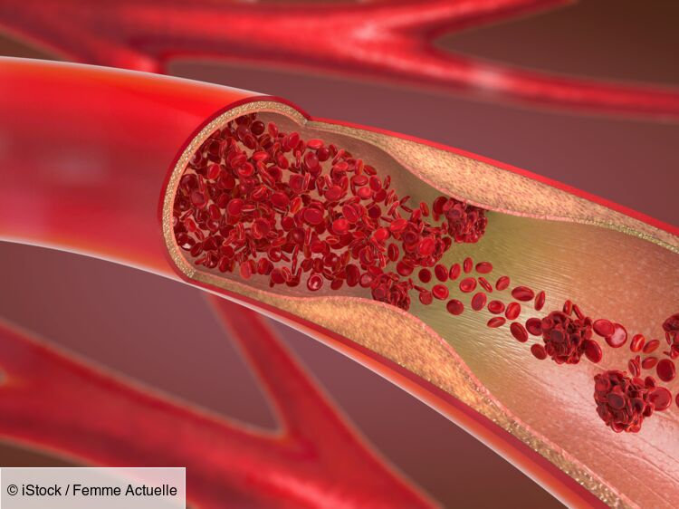 Alzheimer : un lien avec la circulation sanguine ?