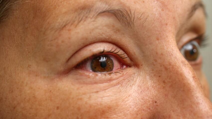 Conjonctivite, allergies : 8 bon réflexes pour soigner ses yeux