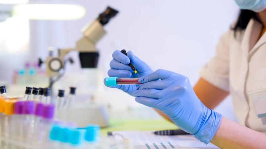 Créatine: comment interpréter le taux dans le sang (créatinémie) et les urines (créatinurie)?