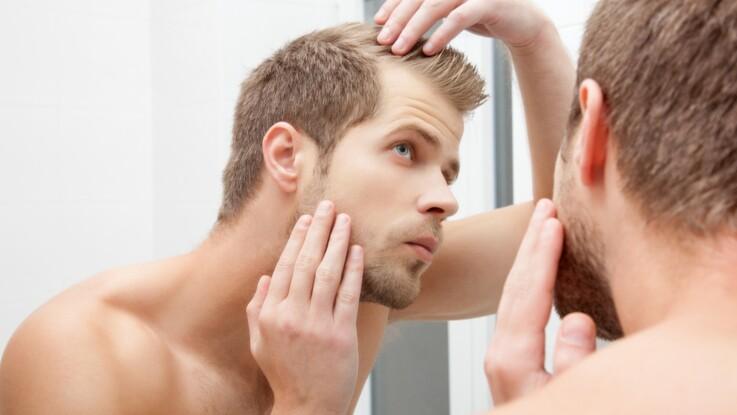 Alopécie: quelles sont les causes et comment prévenir cette perte accélérée des cheveux?