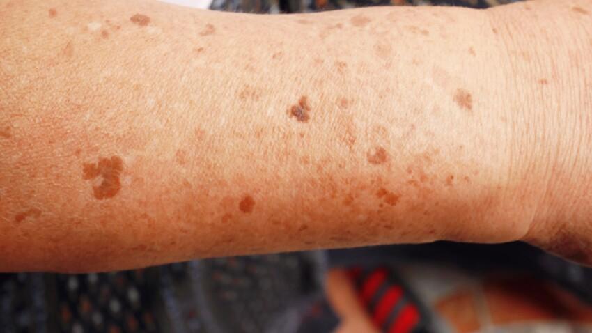 """Pityriasis versicolor : attention à ce """"champignon de l'été"""" responsable de taches brunes"""