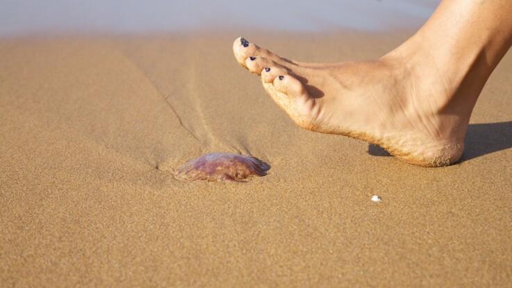 Piqûres de méduses : 4 erreurs à ne pas commettre