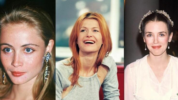 Avant/après, ces stars qui ont refait leurs lèvres