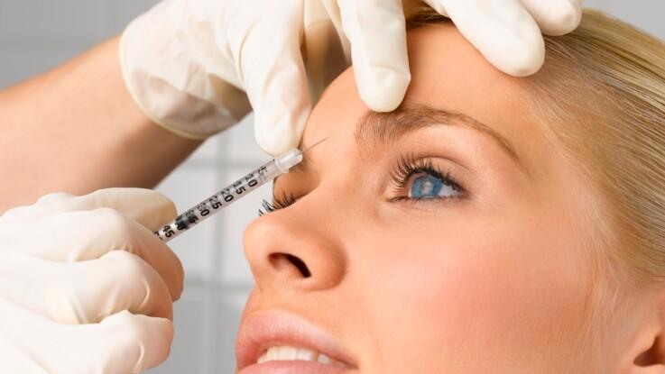 Botox : tout ce qu'il faut savoir avant de se lancer