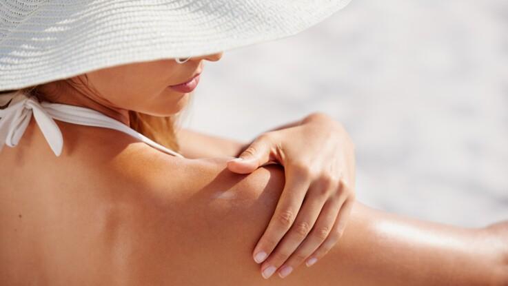 Cancer de la peau : 6 idées reçues sur les mélanomes