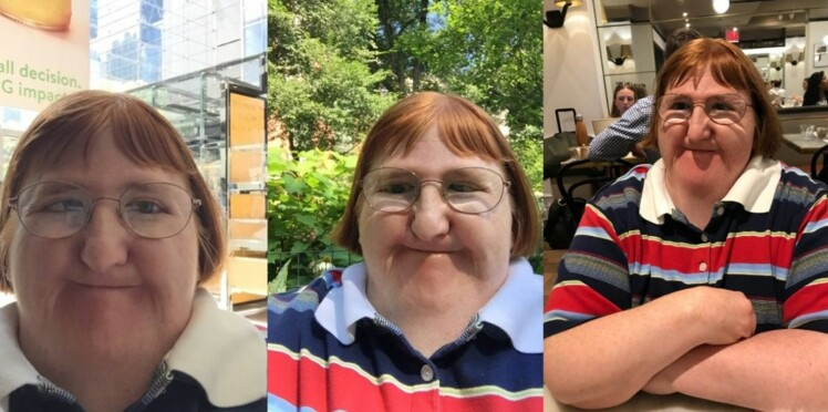 """""""Trop moche pour prendre des seflies"""", Melissa Blake une journaliste américaine atteinte de handicap répond à ses détracteurs sur Twitter"""