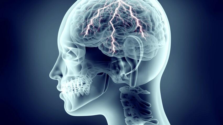 Bientôt un patch anti-migraine ?