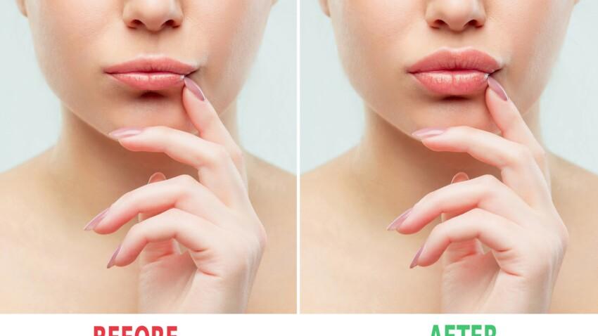"""Le """"lip glue challenge"""", le nouveau défi beauté des réseaux sociaux qui inquiète les dermatologues"""