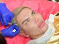 """Rodrigo Alves : après 11 rhinoplasties, le """"Ken humain"""", a peur que son nez s'effondre"""