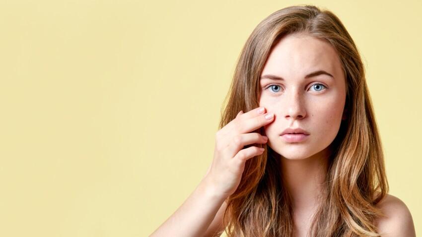 Acné : 7 remèdes naturels pour traiter boutons et cicatrices