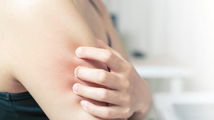 Dermatillomanie ou trouble d'excoriation : d'où vient cette manie de se triturer la peau ?