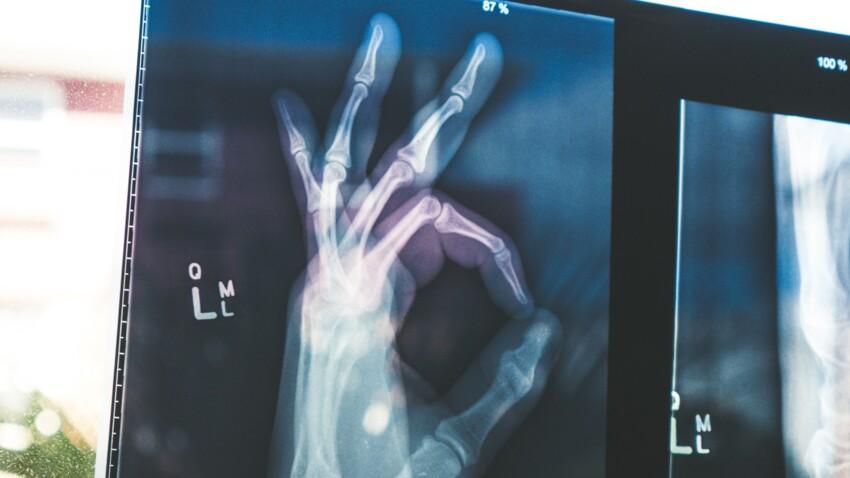 Anti-ostéoporose : 7 astuces pour conserver des os solides