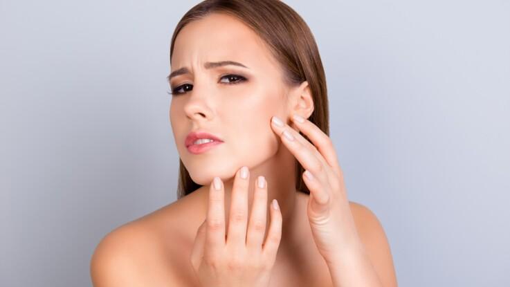 Alimentation, stress, soins dermatologiques : les facteurs qui favorisent l'acné