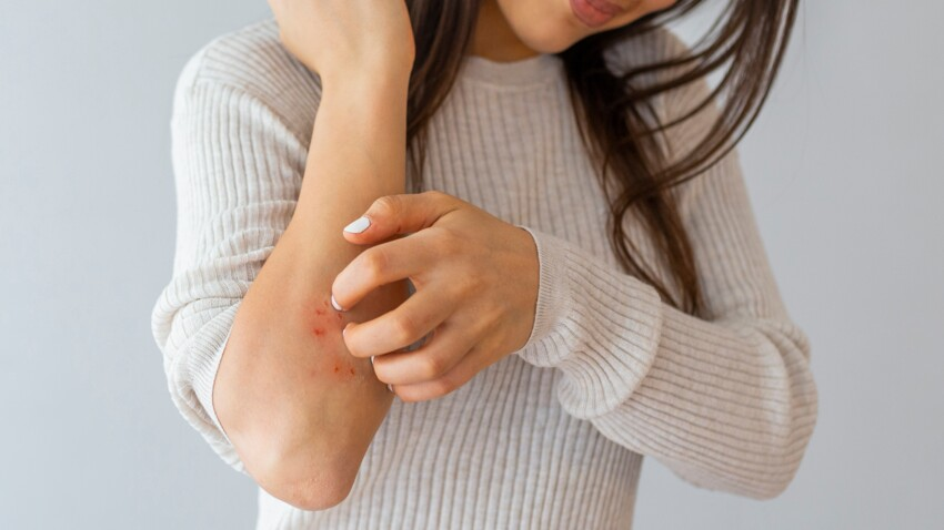 Psoriasis : cette maladie de peau est-elle contagieuse ?