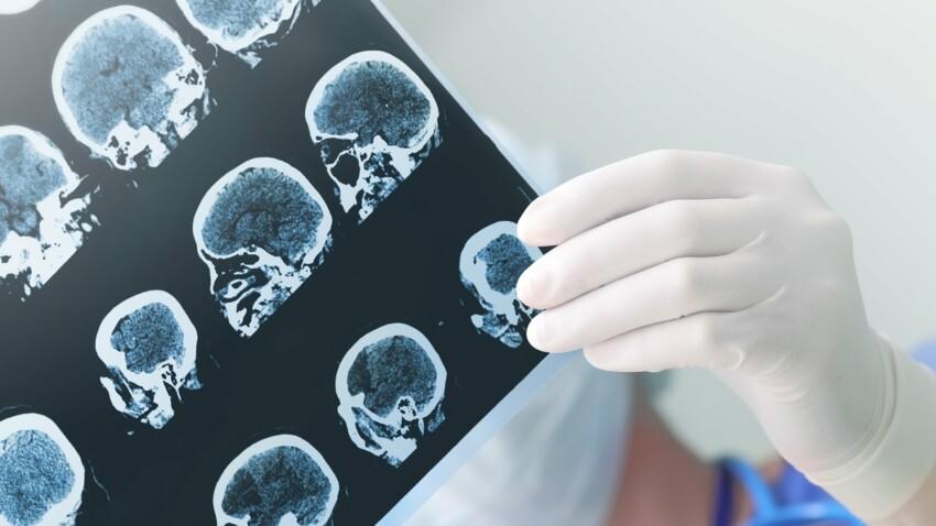 Maladies neurodégénératives: les pistes qui donnent de l'espoir