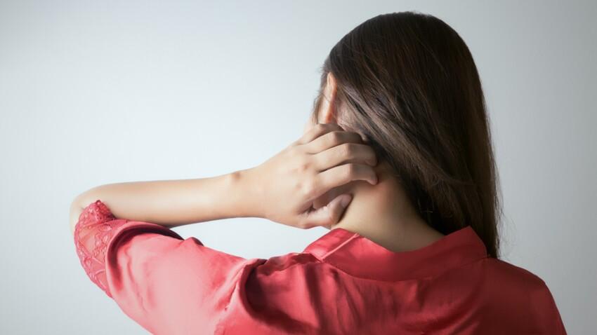 Eczéma, dermatite : les crèmes à base de corticoïdes pourraient aggraver les problèmes de peau