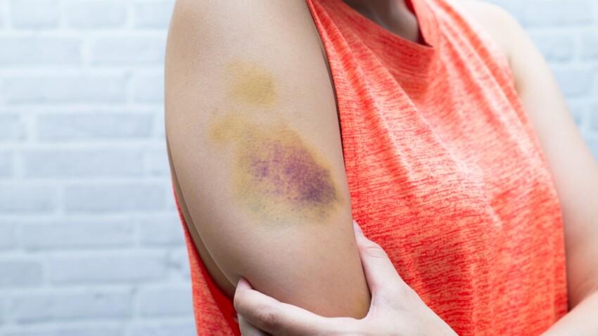 10 astuces naturelles pour accélérer la guérison d'un bleu