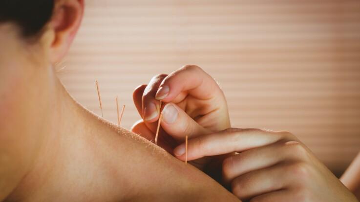 Chimiothérapie : c'est prouvé, l'acupuncture peut aider à soulager les effets secondaires