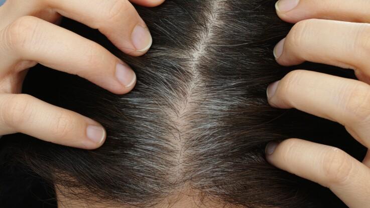 Le stress donne des cheveux blancs : des scientifiques ont enfin découvert pourquoi