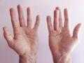 Douleur à la main, rétraction des doigts... Et si c'était la maladie de Dupuytren ?