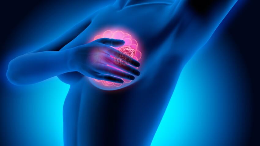 Cancer du sein: on n'arrête pas le progrès