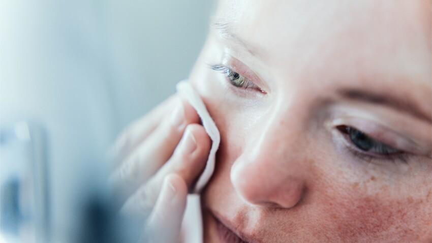 Quelle routine beauté adopter quand on a la peau sèche ?