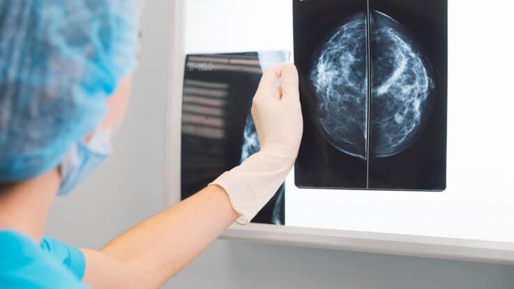 Quels sont les cancers les plus fréquents en France ?