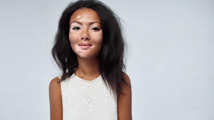 Vitiligo : qu'est-ce que cette maladie qui cause la dépigmentation de la peau ?