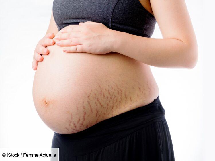 Ashley Graham : elle assume ses vergetures et son corps post-grossesse sur Instagram