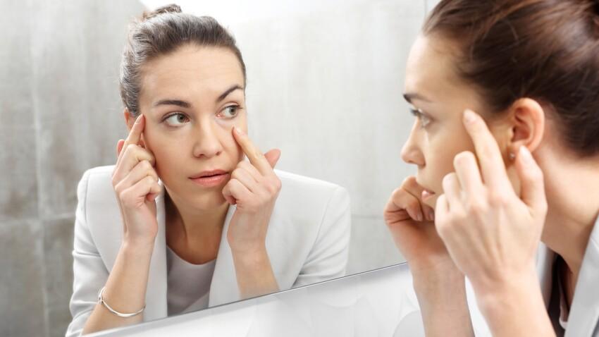 Kératite: quels sont les causes de cette inflammation de la cornée et comment la soigner?