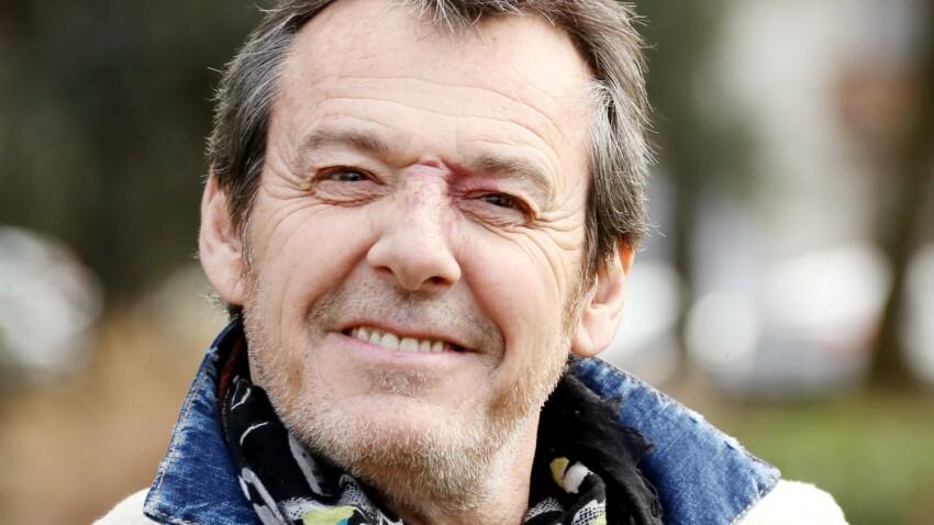 Jean-Luc Reichmann : pourquoi a-t-il une tache sur le nez ?