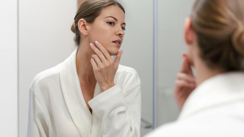 Patchs points noirs : bons ou dangereux pour la peau ?