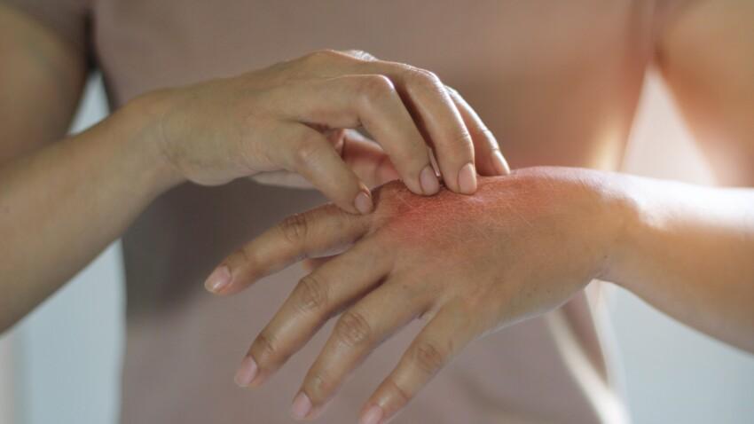 Coronavirus et eczéma : les conseils des dermatologues pour protéger sa peau