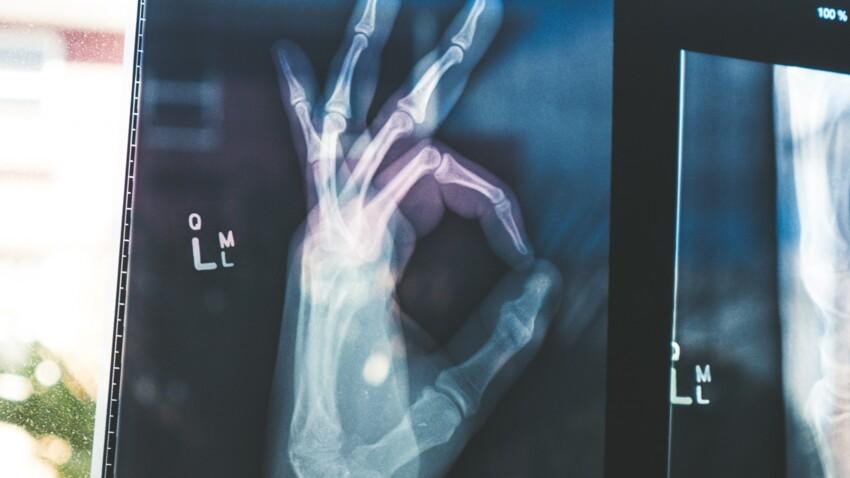 Densité osseuse : nos conseils pour prendre soin de ses os