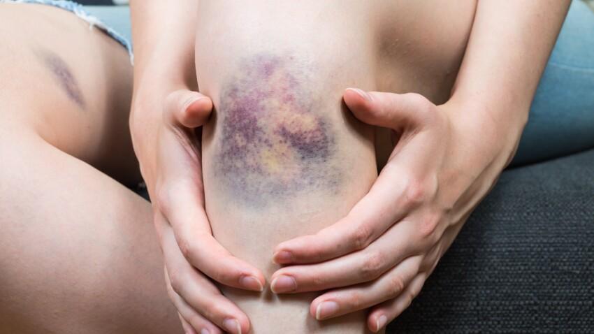 Hémophilie : quels sont les symptômes de cette pathologie ?