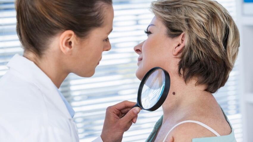 Cancer de la peau: les symptômes à reconnaître et les différents traitements
