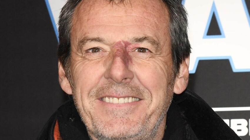 Jean-Luc Reichmann soigné en urgence en plein confinement