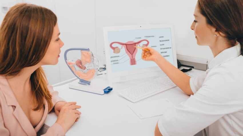 Fibromes utérins : quels sont les différents traitements ?