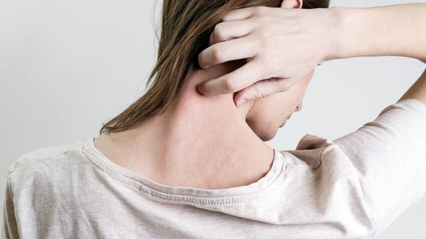 Pityriasis rosé de Gibert : d'où vient ce trouble dermatologique et quels sont les traitements ?